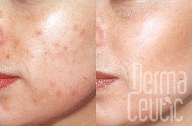 Web image of a Dermaceutic Milk Peel - review of mine to follow soon.