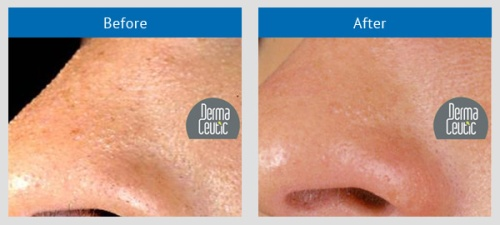 Web image of before & after Dermaceutic Milk Peel