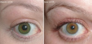 Web image for MD Lash Factor results in 3 months