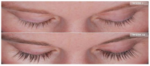 Web image for MD Lash Factor in 4 months