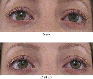 Web image for MD Lash Factor results in 7 weeks